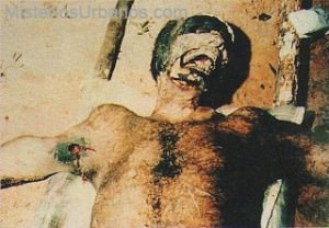 Hombre Mutilado1