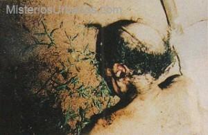 Hombre Mutilado2 (1)