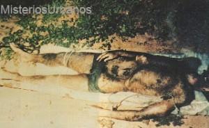 Hombre Mutilado4
